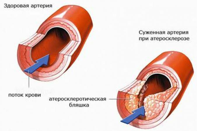 Как вылечить поликистоз гомеопатией