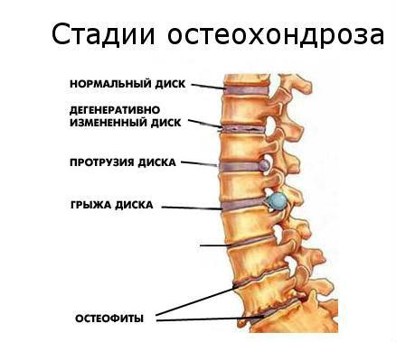 Держатель для шеи от остеохондроза