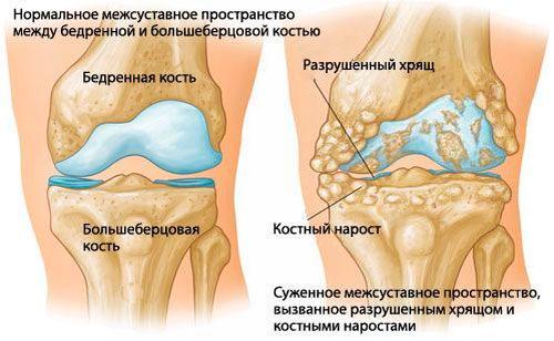 Как вылечить остеохондроз шейного отдела при помощи лекарственных