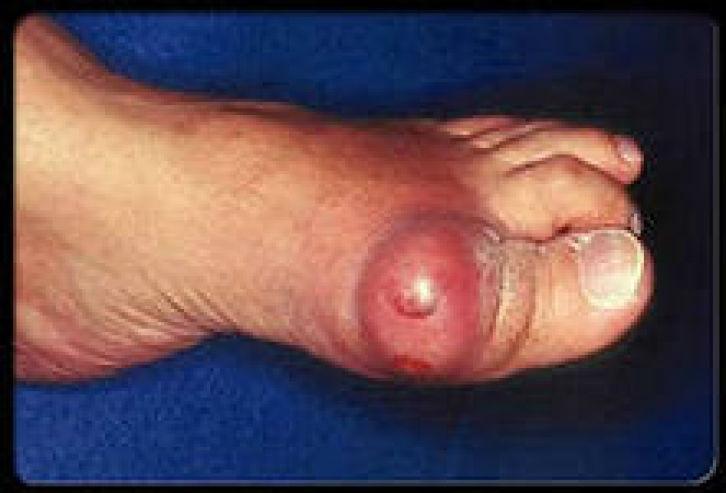 подагра как от нее избавиться Подагра (наросты на костях) - лечение народными средствами.