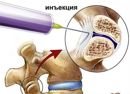 От остеохондроза какие лекарство принимают