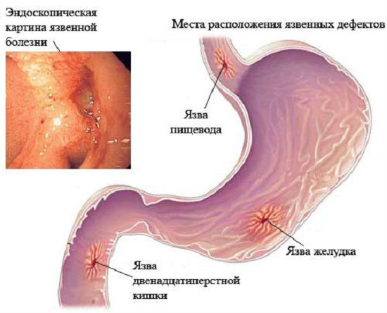 как долго излечивается язва желудка