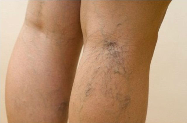 Проблема вен на ногах лечение