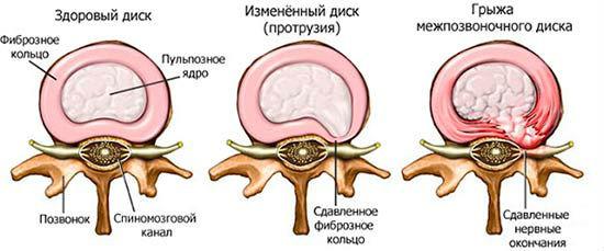 Боль под ребром в правом боку сзади в области поясницы