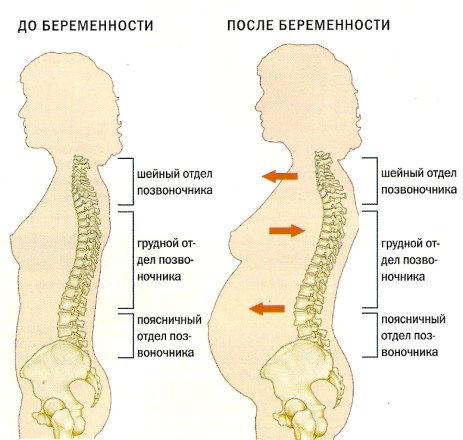Что делать если левый часть спины болит