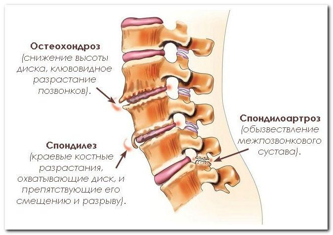 Болит слева под лопаткой отдает в руку шею