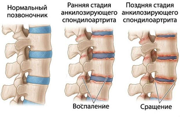 Можно ли делать выпады при остеохондрозе
