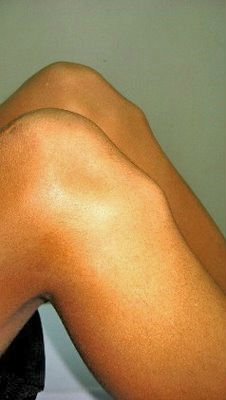 Кандидозный стоматит лечение флуконазол