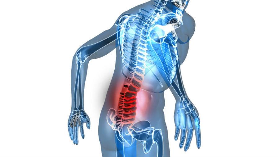 Диагностика грудного остеохондроза грудного отдела