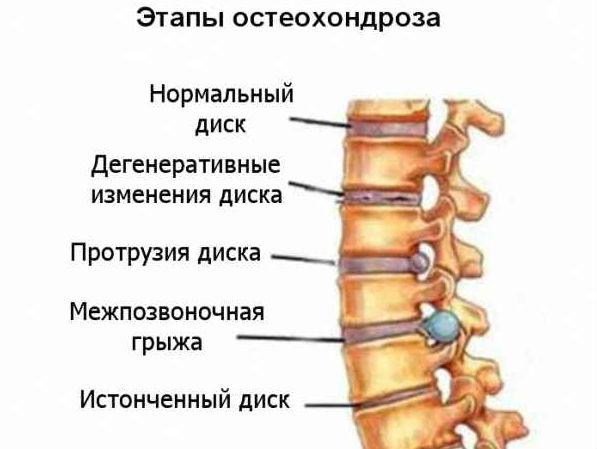 Лечение лопухом спины
