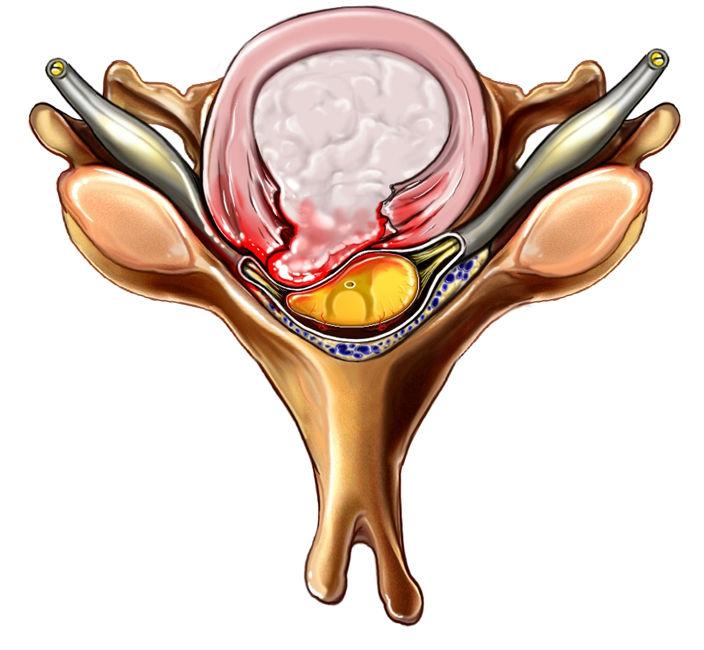 Как определить шейный остеохондроз болит голова