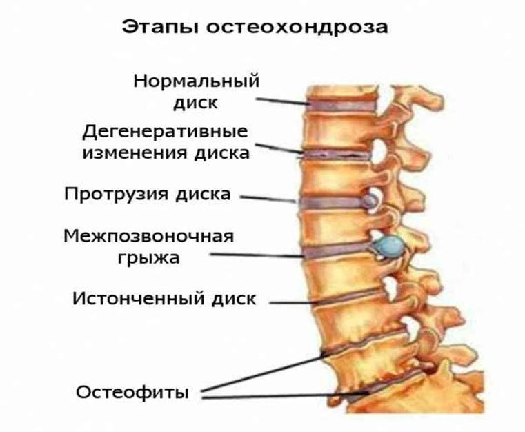 Диагностика грудного отдела аорты