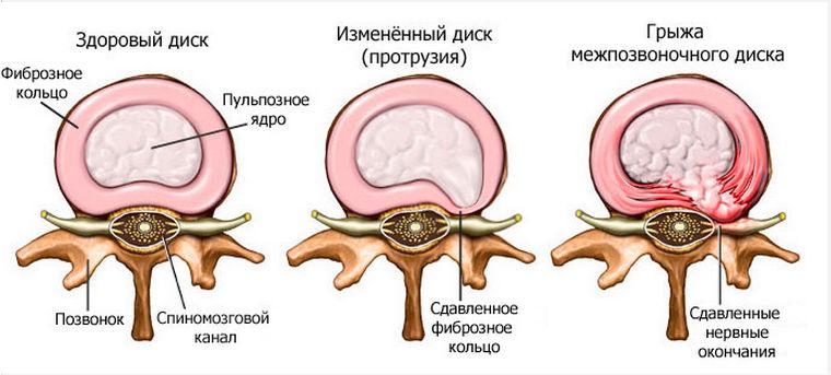 Дипроспан при остеохондрозе поясничного отдела позвоночника