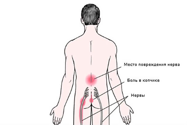 Как лечить шейный радикулит в домашних условиях