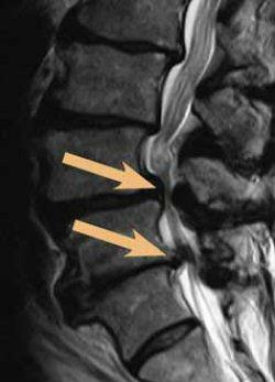 Массаж при грудном остеохондрозе позвоночника видео