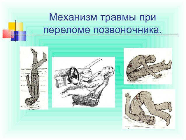 Невралгия шейно грудного отдела симптомы