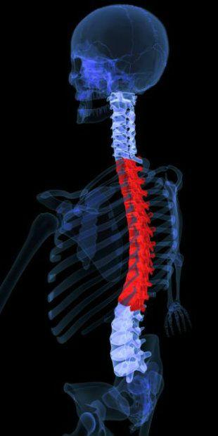 в области Боли верхней части позвоночника спины