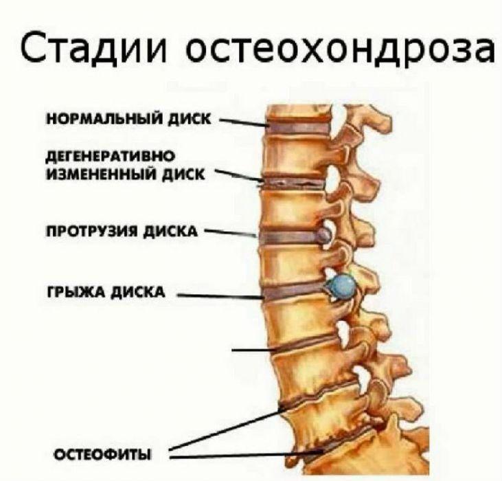 Самые читаемые статьи: Лечение венозной недостаточности сосудов головного мозга