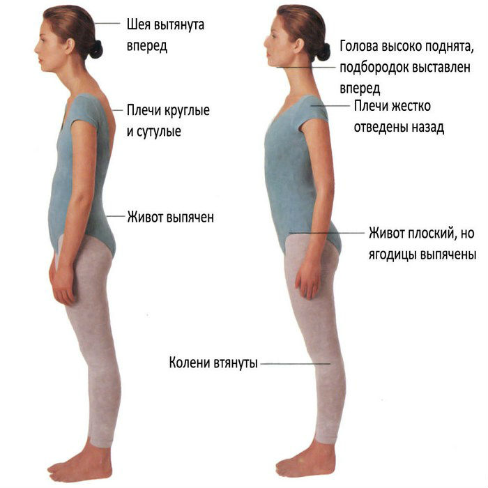 Формирование правильной осанки на уроках гимнастики