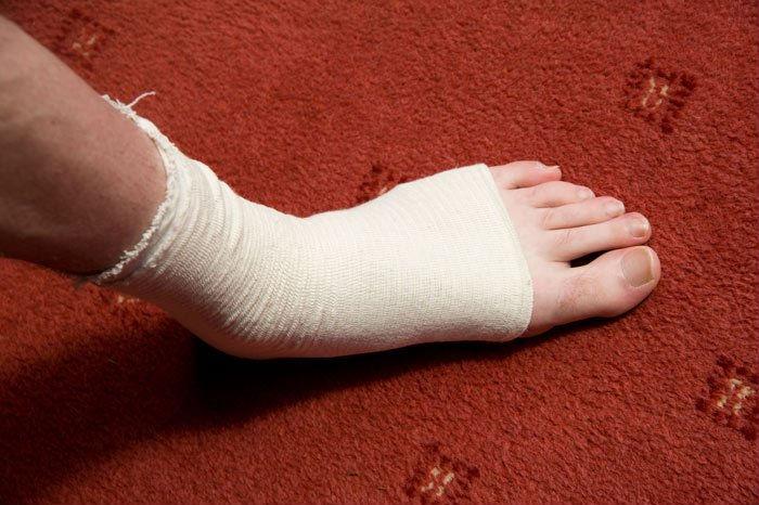 девушка режет ногу гвоздём фото