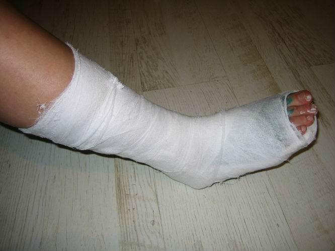 Как выглядит гипс на ноге