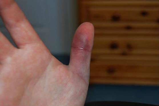 Ушиб пальца на руке что делать в