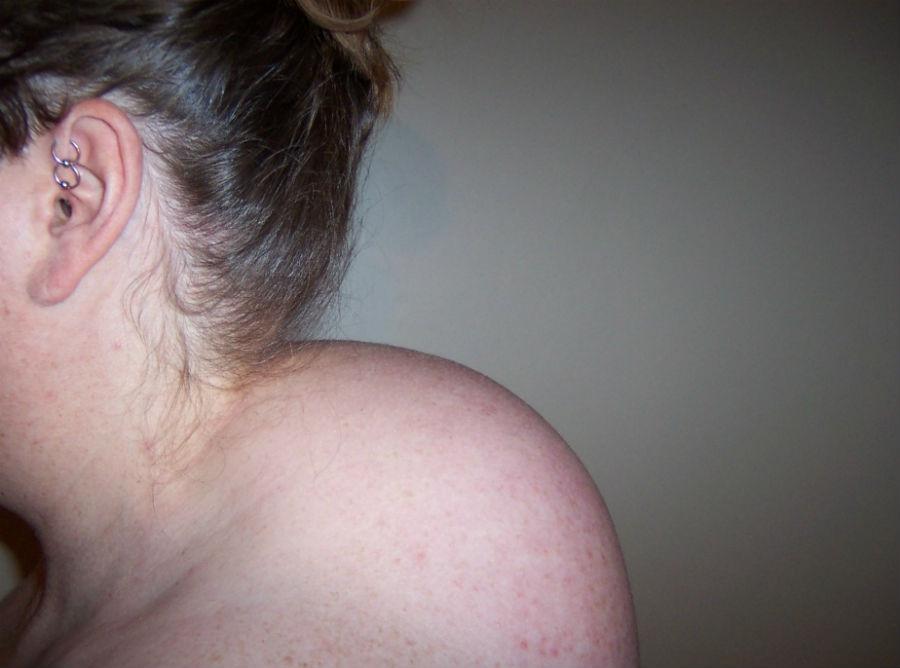 головокружение без головной боли с тошнотой
