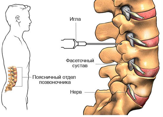 Лечебная физкультура при хондрозе шейного отдела видео