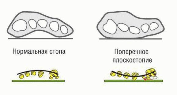 Как лечат перелом лучевой кости со смещением