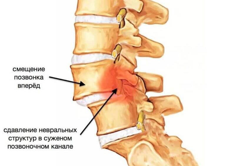 Зарядка от остеохондроза для позвоночника шейно