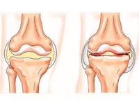 Артрит и артроз лечение
