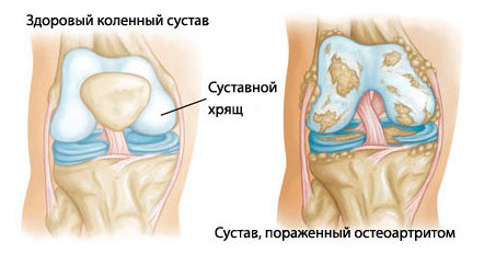 lekarstva-ot-sustavov-kolennih