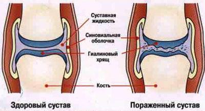 Артрит локтевого сустава симптомы