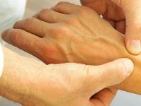 Осмотр руки врачом