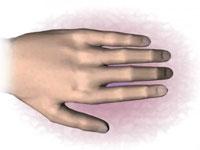 Как лечить артроза пальцев ног