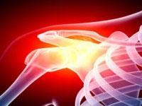 плечевой артроз