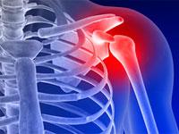 остеоартроз плечевого сустава