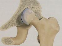 Признаки коксартроза тазобедренного сустава
