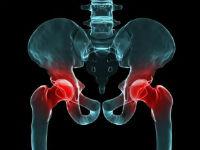 Повреждение тазобедренных суставов