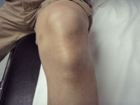 Бугры на колене