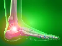 Изображение - Резкая боль сустав по определенным углом bol-su