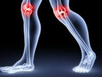 Изображение - Медицина заболевания коленного сустава bolezni-kol-su