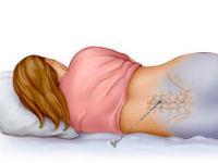 Есть ли боли при грыже грудного отдела
