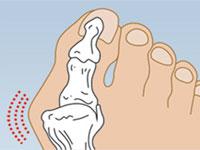 бурсит большого пальца на ноге