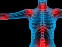 Изображение - Болят коленные и плечевые суставы chtodel-bolyat-su