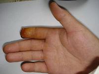 Ампутация пальца