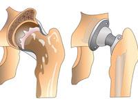 Тотальное эндопротезирование тазобедренного сустава реабилитация
