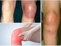 Воспаленное колено с гноем