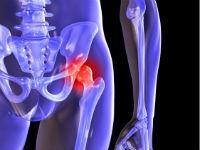 Повреждение тазобедренного сустава