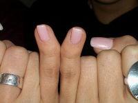 Кривые пальцы